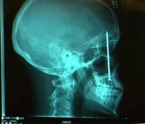 X-ray zdjecie