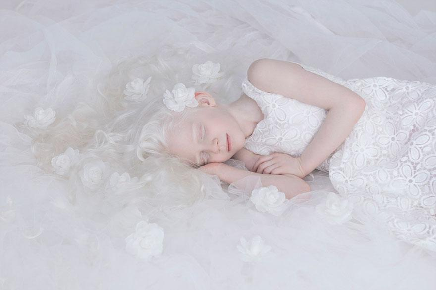 albinism-beautiful-albino-people-14