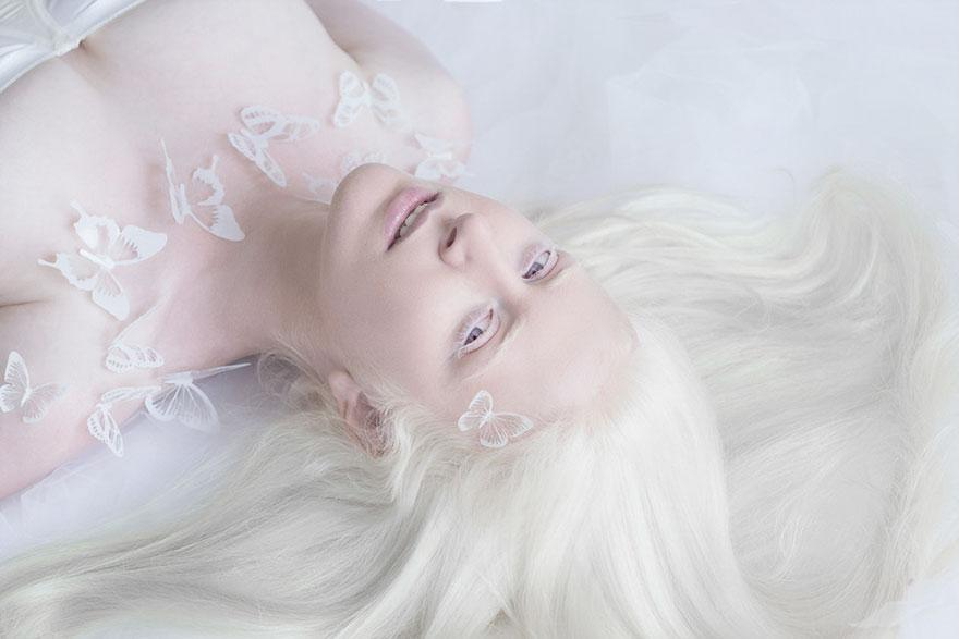 albinism-beautiful-albino-people-2