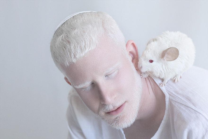 albinism-beautiful-albino-people-3