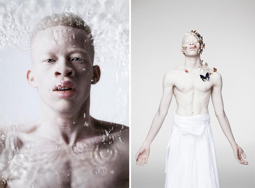 albinism-beautiful-albino-people-5
