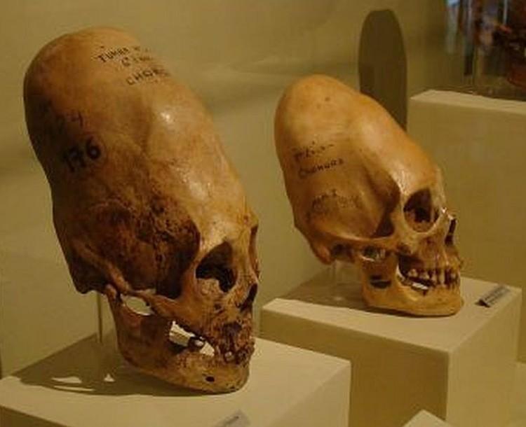 czaszki o wydluzonym ksztalcie